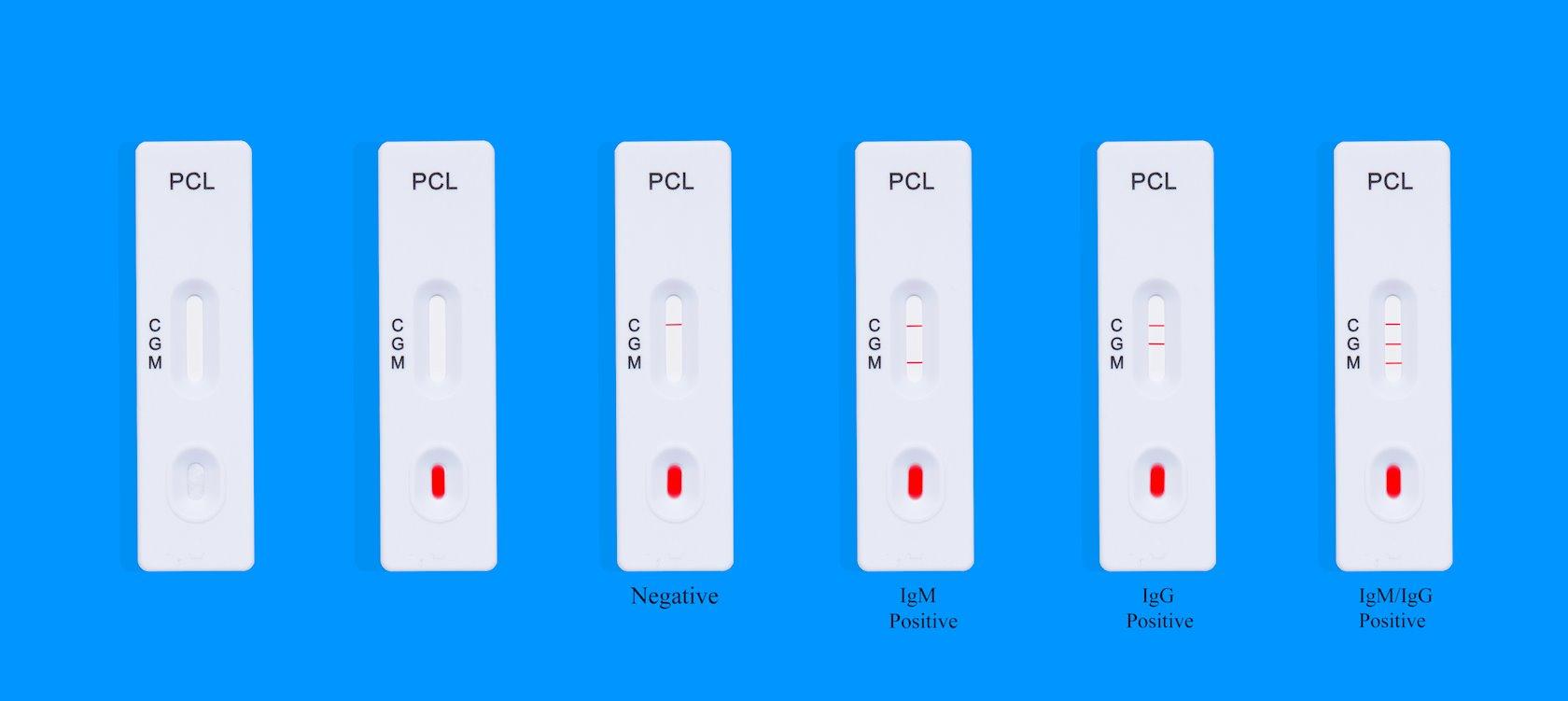 PCL COVID19 IgG/IgM Rapid Gold, 5 ədəd Antitellərin aşkarı üçün ekspress test
